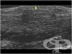 Други уточнени мускулни увреждания МКБ M62.8 - изображение