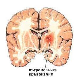 Вътречерепен (нетравматичен) кръвоизлив у плода и новороденото, неуточнен МКБ P52.9 - изображение