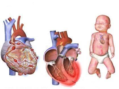 Медицински грижи за майката при hydrops fetalis МКБ O36.2 - изображение