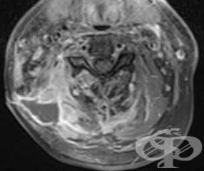 Други фибробластични увреждания МКБ M72.8 - изображение
