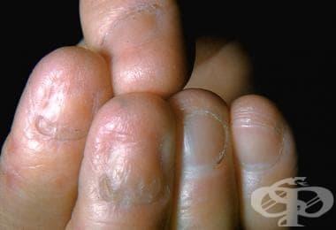 Epidermolysis bullosa dystrophica МКБ Q81.2 - изображение