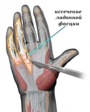 Фибробластични увреждания МКБ M72 - изображение