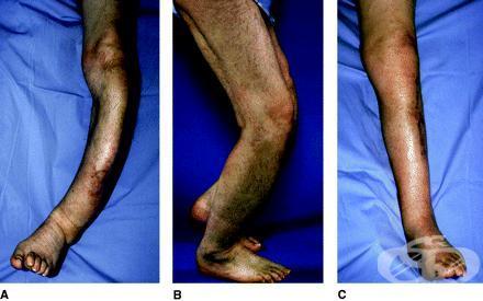Болест на Paget [деформиращ остеит] МКБ M88 - изображение