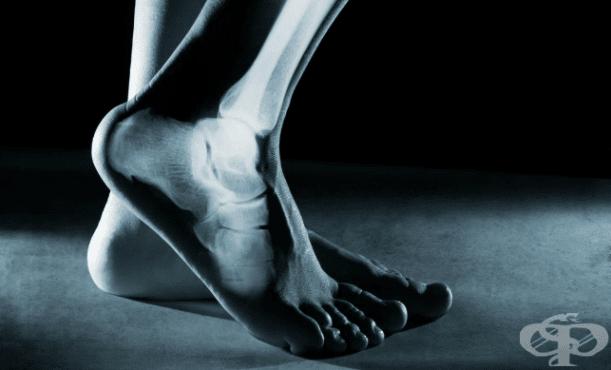 Други видове последваща ортопедична помощ МКБ Z47 - изображение