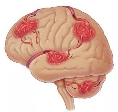Артериовенозна аномалия на церебрални съдове МКБ Q28.2 - изображение
