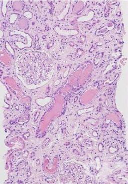 Бъбречни тубулоинтерстициални увреждания при новообразувания МКБ N16.1 - изображение