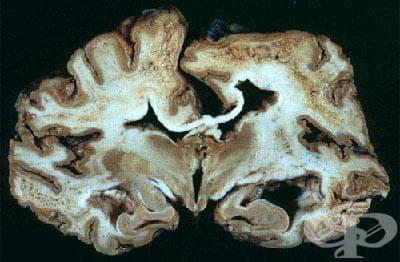 Атипична вирусна инфекция на централната нервна система, неуточнена МКБ A81.9 - изображение