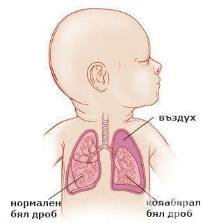 Друга и неуточнена ателектаза на новороденото МКБ P28.1 - изображение