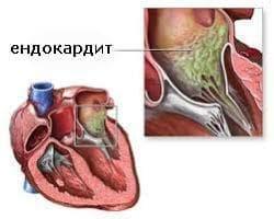Други сърдечно-съдови нарушения, възникващи в перинаталния период МКБ P29.8 - изображение