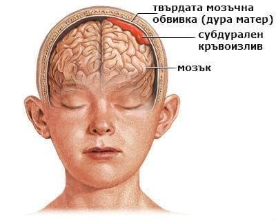 Други вътречерепни (нетравматични) кръвоизливи у плода и новороденото МКБ P52.8 - изображение