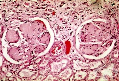 Гломерулни увреждания при захарен диабет (E10-E14ї с общ четвърти знак .2) МКБ N08.3 - изображение