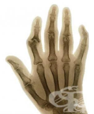 Юношески [ювенилен] артрит при болести, класифицирани другаде МКБ M09 - изображение