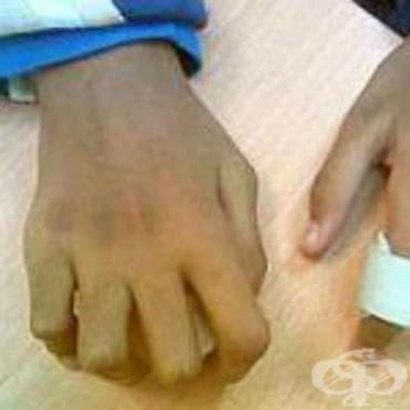 Юношески артрит при други болести, класифицирани другаде МКБ M09.8 - изображение