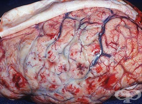 Менингококов менингит (G01*) МКБ A39.0 - изображение