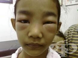 Нефрозен синдром МКБ N04 - изображение