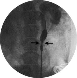 Прегъване и стриктура на уретера без хидронефроза МКБ N13.5 - изображение