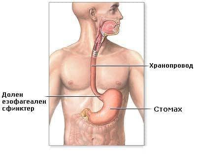 Други вродени аномалии на горната част на храносмилателния тракт МКБ Q40 - изображение