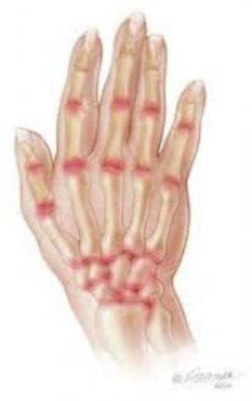 Ревматоиден артрит, неуточнен МКБ M06.9 - изображение