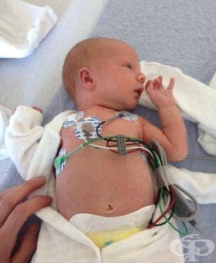 Ритъмни сърдечни нарушения на новороденото МКБ P29.1 - изображение