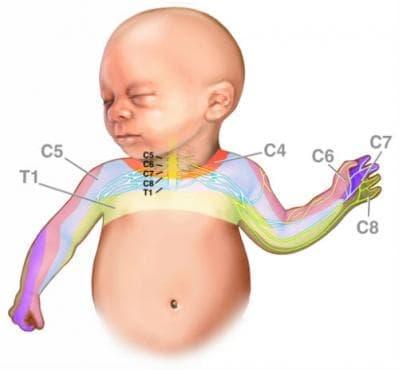 Родова травма на периферната нервна система МКБ P14 - изображение