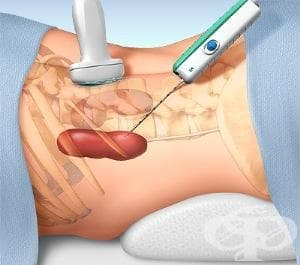 Тубулоинтерстициално увреждане на бъбреците, неуточнено МКБ N15.9 - изображение
