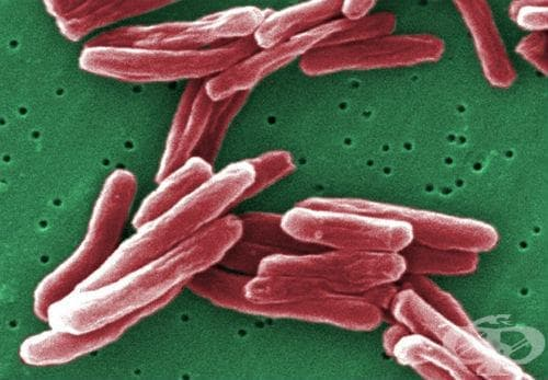 Вродена туберкулоза МКБ P37.0 - изображение