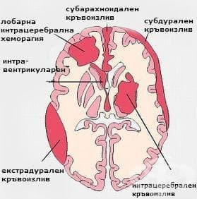 Вътречерепен нетравматичен кръвоизлив у плода и новороденото МКБ P52 - изображение