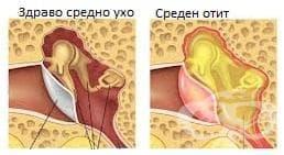 Възпаление на средното ухо, неуточнено МКБ H66.9 - изображение
