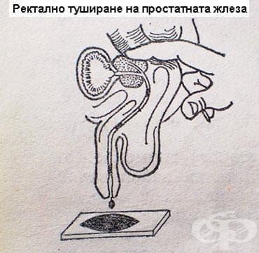 Абсцес на простатата МКБ N41.2 - изображение