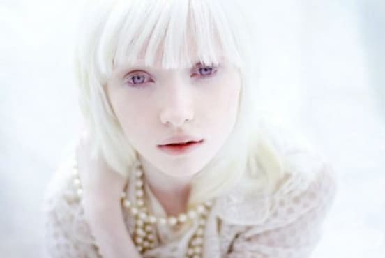 Албинизъм МКБ E70.3 - изображение