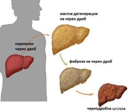 Алкохолна болест на черния дроб МКБ K70 - изображение