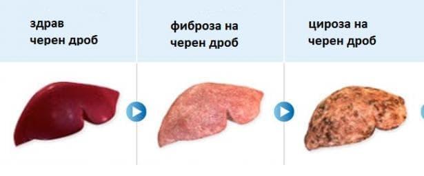 Алкохолна фиброза и склероза на черния дроб МКБ K70.2 - изображение