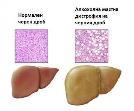 Алкохолна мастна дистрофия на черния дроб МКБ K70.0 - изображение