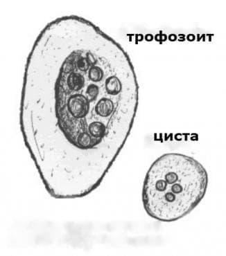 Амебиаза МКБ A06 - изображение
