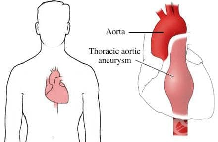 Аневризма на торакалната аорта с руптура МКБ I71.1 - изображение