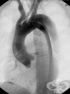 Аневризма и дисекация на аортата МКБ I71 - изображение