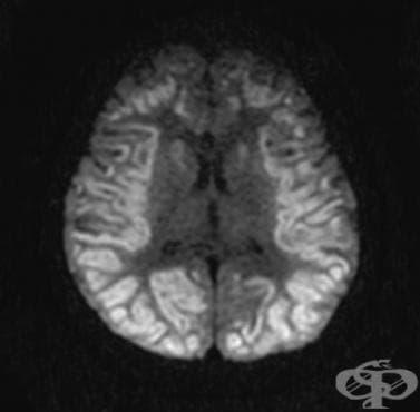 Аноксично увреждане на главния мозък, некласифицирано другаде МКБ G93.1 - изображение