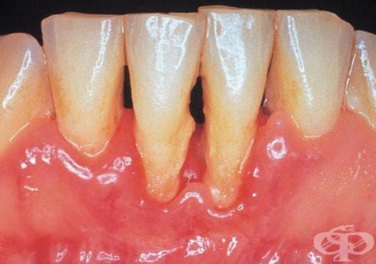 Аномалии в големината и формата на зъбите МКБ K00.2 - изображение