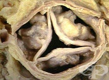 Аортна (клапна) инсуфициенция МКБ I35.1 - изображение