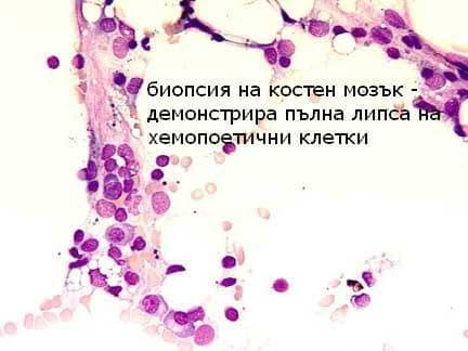 Апластична анемия, неуточнена МКБ D61.9 - изображение