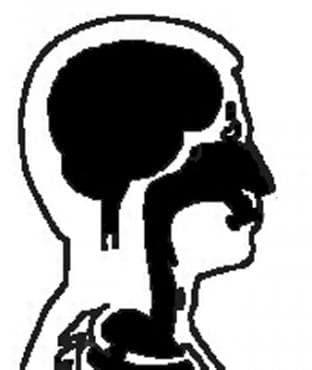 Апраксия МКБ R48.2 - изображение