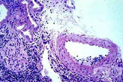Гигантоклетъчен артериит с ревматична полимиалгия МКБ M31.5 - изображение