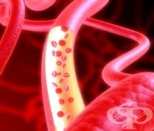 Хемолитични анемии МКБ D55-D59 - изображение