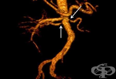 Атеросклероза на бъбречна артерия МКБ I70.1 - изображение