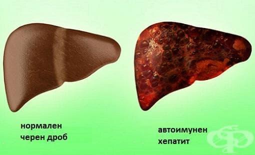 Автоимунен хепатит МКБ K75.4 - изображение