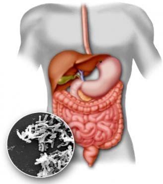 Бактериална чревна инфекция, неуточнена МКБ A04.9 - изображение