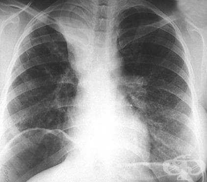 Агенезия на белия дроб МКБ Q33.3 - изображение
