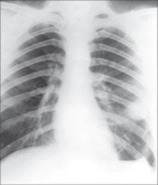 Белодробна туларемия МКБ A21.2 - изображение