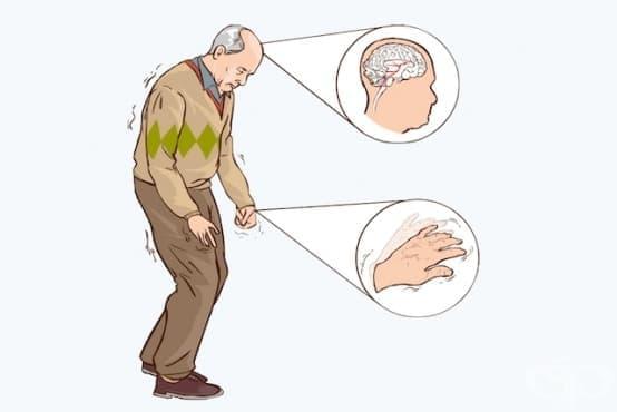 Болест на Parkinson МКБ G20 - изображение