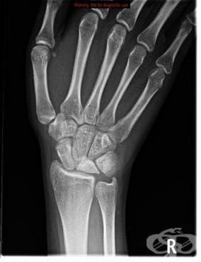 Болест на Kienbцck при възрастни МКБ M93.1 - изображение
